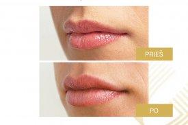 Subtilus lūpų modeliavimas. Procedūrą atliko gyd. Darius Bagdanavičius. Naudotas Teoxane RHA® KISS užpildas.