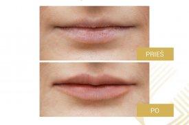 Subtilus lūpų modeliavimas. Procedūrą atliko dr. Loreta Pilipaitytė. Naudotas ART FILLER® LIPS SOFT užpildas
