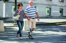 Modernūs ir šiuolaikiški kojos protezai