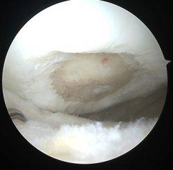 Biologinės daugiasluoksnės membranos įsodinimas