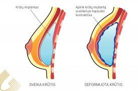 Susidariusi implanto kapsulės kontraktūra