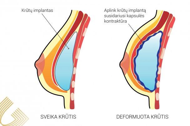 krūties hipertenzija vaistas nuo hipertenzijos hel