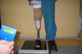Lazerio procedūra protezą turinčiam klientui