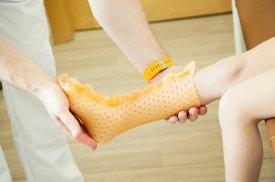 Individualiai gaminamas kojos įtvaras