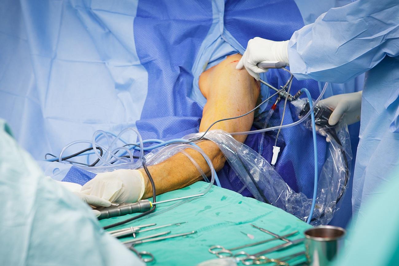 varpos venų operacija visiškai neverta varpos