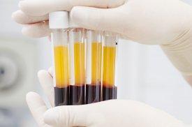 Kraujo plazma su trombocitais atsiskyrusi nuo raudonųjų kraujo kūnelių
